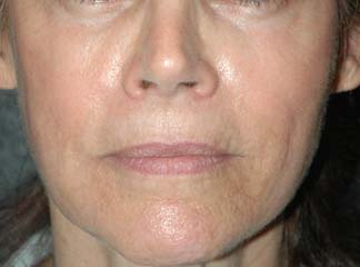 Botox New York Liquid Face Lift After Patient 1