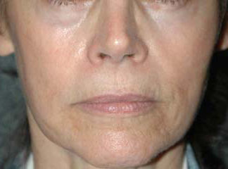 Botox New York Liquid Face Lift Before Patient 1