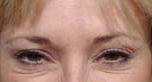 Botox After Patient 1