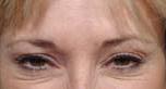Botox After Patient 1