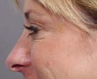Botox After Patient 2