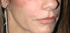 Juvederm New York After Patient 4