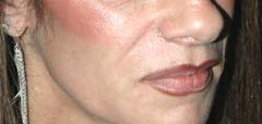 Juvederm New York Before Patient 4