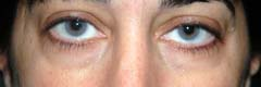 Non-surgical eye lift restylane before patient 3