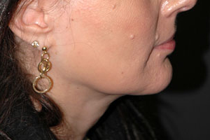 Neck Liposuction - Patient 2 - After