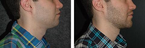 Best Male Chin Augmentation Surgeon