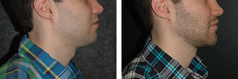 Chin Augmentation New York
