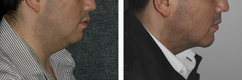 Male Chin Augmentation Before And After Photos