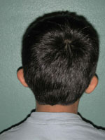 Otoplasty - Patient 3 - Back - Before
