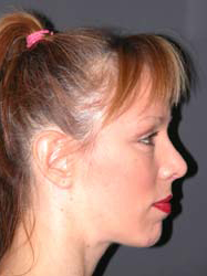 Mid Facelift - Patient 6 - Lateral Right - After