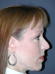 Mid Facelift - Patient 6 - Lateral Right - Before