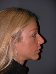 Mid Facelift - Patient 7 - Lateral Right - After