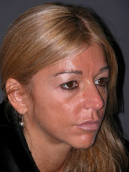 Mid Facelift - Patient 7 - Obl Right - Before