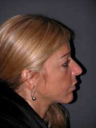 Mid Facelift - Patient 7 - Lateral Right - Before