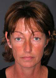 Mid Facelift - Patient 3 - Front - Before