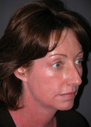 Mid Facelift - Patient 3 - Obl Right - After