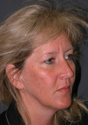 Mid Facelift - Patient 5 - Obl Right - Before