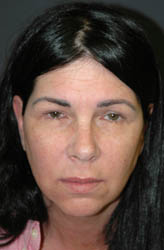 Mid Facelift - Patient 1 - Front - Before