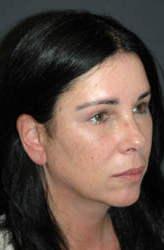 Mid Facelift - Patient 1 - Obl Right - After