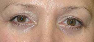 Eye Lift - Patient 6 - After
