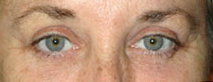 Eye Lift - Patient 8 - After