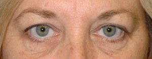 Eye Lift - Patient 8 - Before