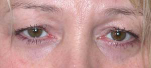 Eye Lift - Patient 6 - Before