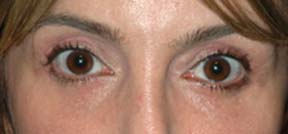 Eye Lift - Patient 2 - After