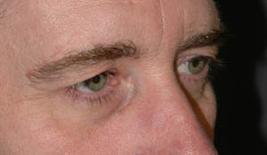 Eye Lift - Patient - Before