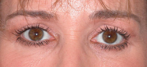 Eye Lift - Patient 16 - After