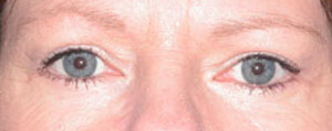Eye Lift - Patient 11 - After
