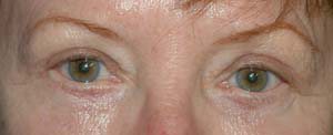 Eye Lift - Patient 9 - After