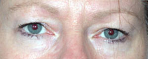 Eye Lift - Patient 11 - Before