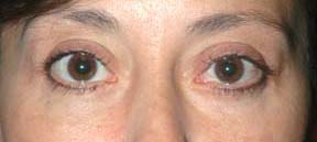 Eye Lift - Patient 4 - After