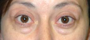Eye Lift - Patient 4 - Before