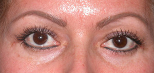 Eye Lift - Patient 14 - After