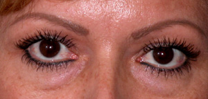 Eye Lift - Patient 14 - Before