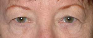 Eye Lift - Patient 9 - Before