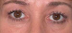 Eye Lift - Patient 16 - Before