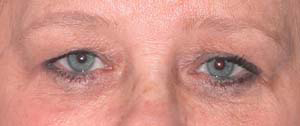 Eye Lift - Patient 15 - Before