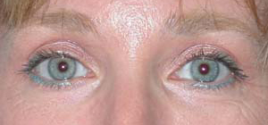 Eye Lift - Patient 10 - After