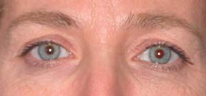 Eye Lift - Patient 10 - Before