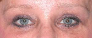 Eye Lift - Patient 15 - After