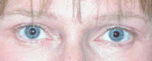 Eye Lift - Patient 3 - After
