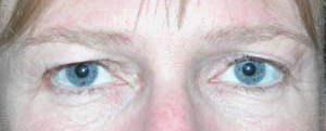 Eye Lift - Patient 3 - Before