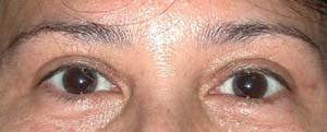 Eye Lift - Patient 19 - After