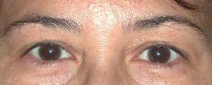 Eye Lift - Patient 19 - Before