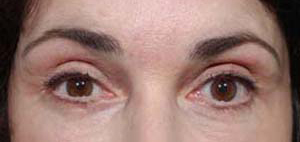 Eye Lift - Patient 12 - After