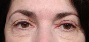 Eye Lift - Patient 12 - Before