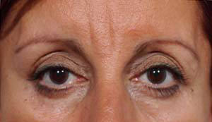 Eye Lift - Patient 17 - After
